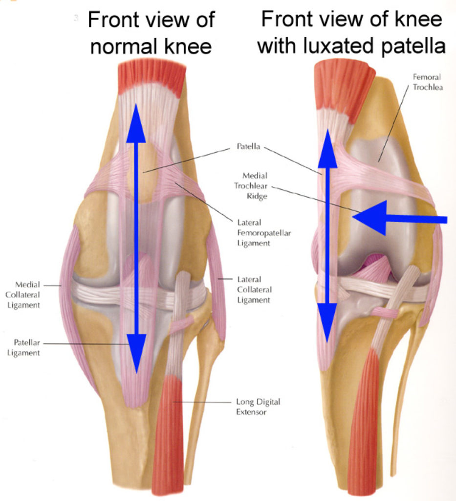 Medial Luxation of the Patella 3