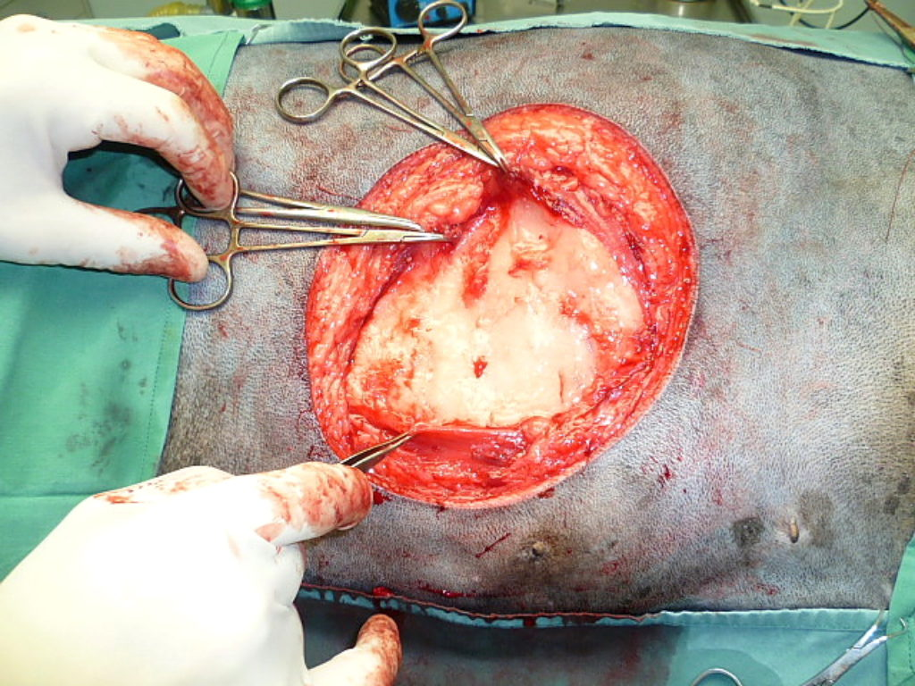 Annie's MAJOR & successful cancer surgery 5