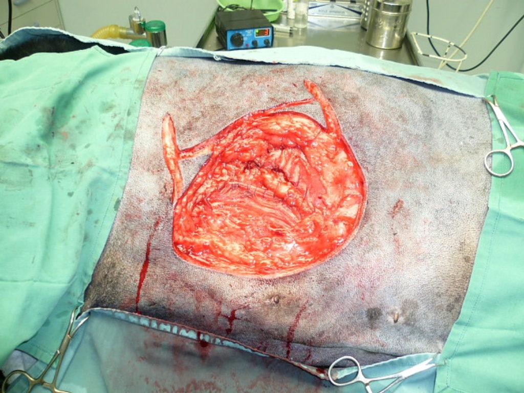 Annie's MAJOR & successful cancer surgery 7