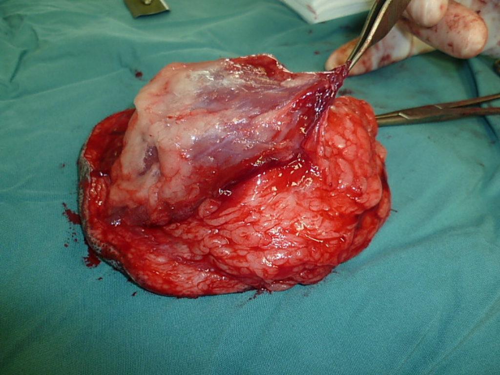 Annie's MAJOR & successful cancer surgery 15